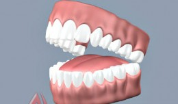 teeth and tongue, 3d anatomy models